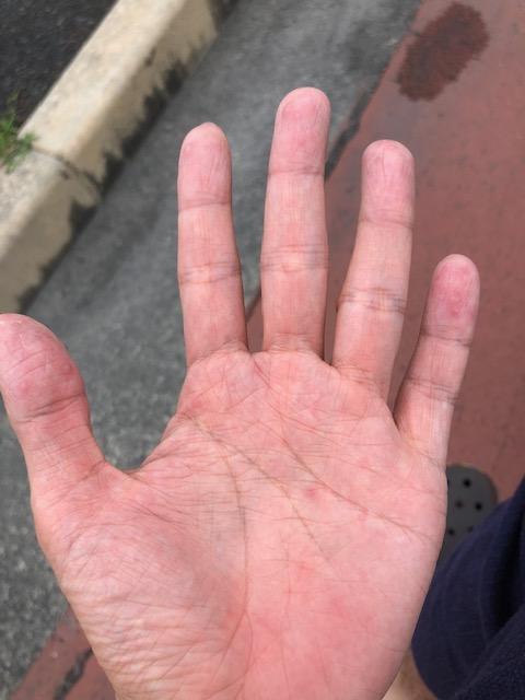 right-hand1